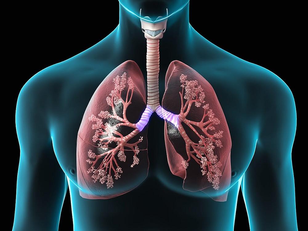 Akciğer Temizleme Kürü Nasıl Yapılır?