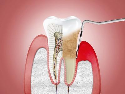 Diş Apsesi Nedir? Nasıl Geçer? Ne İyi Gelir?