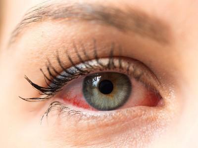 Göz Kuruluğu Neden Olur? Tedavisi Nasıl Yapılır?