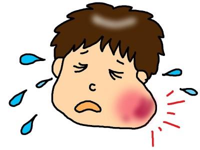 Kabakulak Hastalığının Belirtileri, Tedavisi ve Aşısı