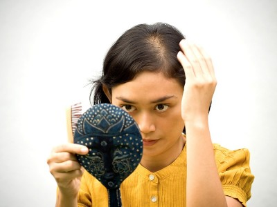 Kadınlarda Saç Dökülmesi Nedenleri ve Kellik