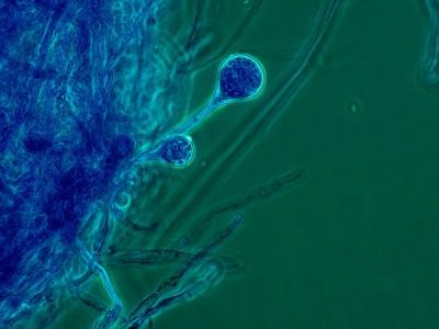 Kara Mantar Hastalığı Ne Demek? Bulaşıcı mı? Belirtileri ve Tedavisi