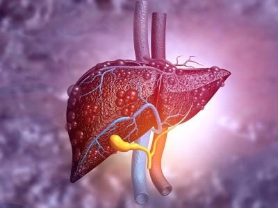 Karaciğer Yetmezliği Nedir? Belirtileri ve Nedenleri Nelerdir?