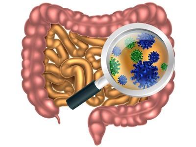 Kolonoskopi Diyeti Nedir? Nasıl Yapılır? Listesi ve Yapanlar