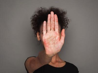 Lupus Hastalığı Nedir? Belirtileri Nelerdir? Neden Olur? Tedavisi Nasıl Yapılır?