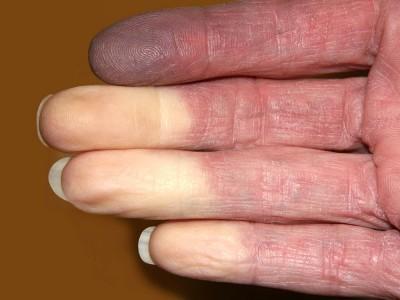 Raynaud Hastalığı Nedir? Tehlikeli midir? Belirtileri ve Tedavisi