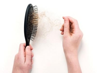 Saç Dökülmesi Genetik mi, Nasıl Anlaşılır?