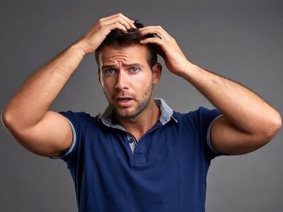 Saç Dökülmesi Nasıl Engellenir? Erkek ve Bayanda Saç Dökülmesi Nedenleri?
