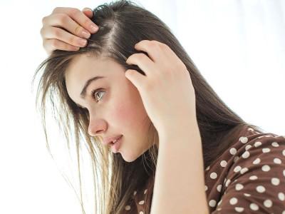 Saç Nezlesi Nedir? Ne İyi Gelir? Tedavisi Nasıl Yapılır?