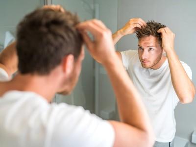 Saçkıran Belirtileri Nelerdir? Tedavisi Nasıl Olur?