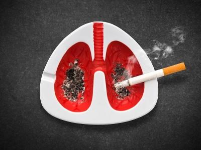 Sigara İçmek ve Akciğer Hastalıkları Arasındaki İlişki Nedir?